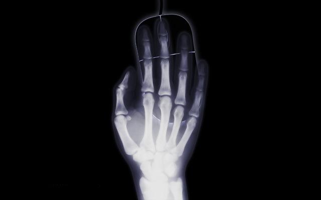 rentgenový obraz